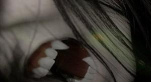 Vampire Fang Dental Crowns